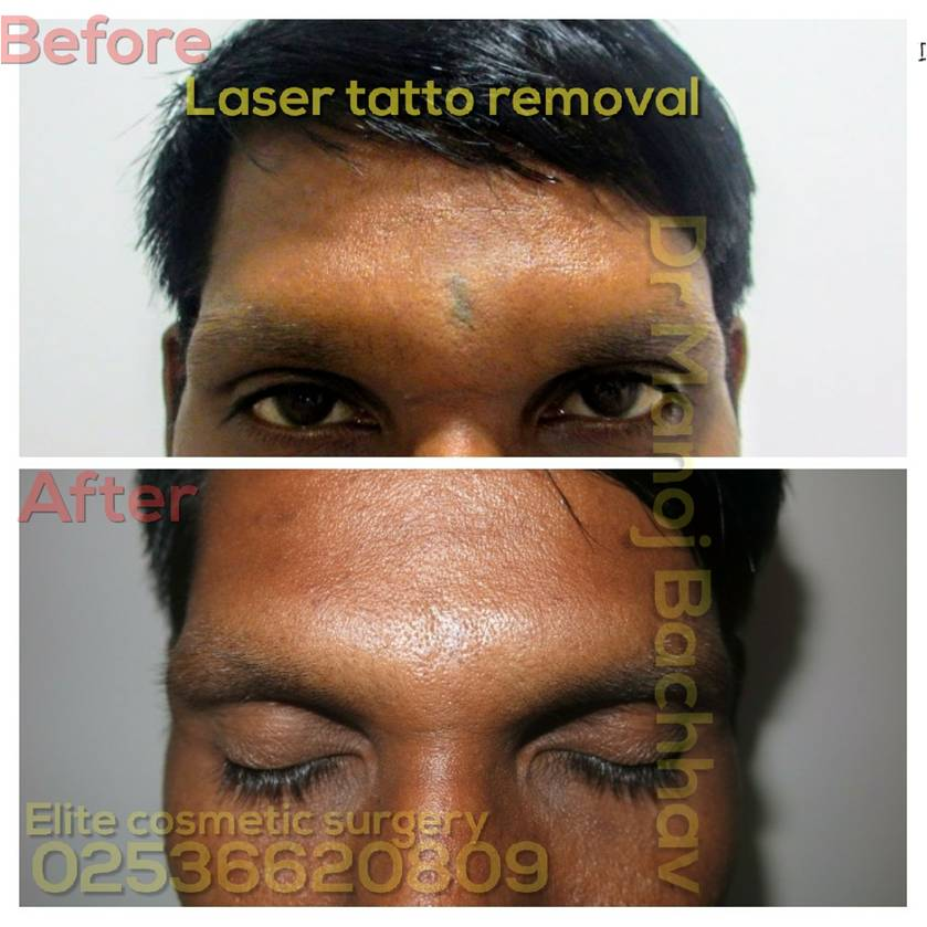 Eyelid Surgery - Blepharoplasty Nashik