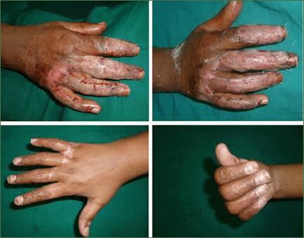 Best Hand Surgery in Nashik