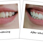 Cosmetic-Dentistry-teeth-whitening-before-and-after1