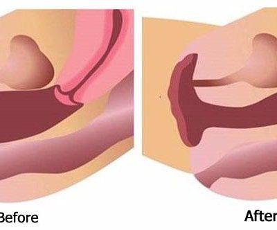 vaginal tightening in nashik
