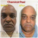 Chemical Peels Treatment Nashik